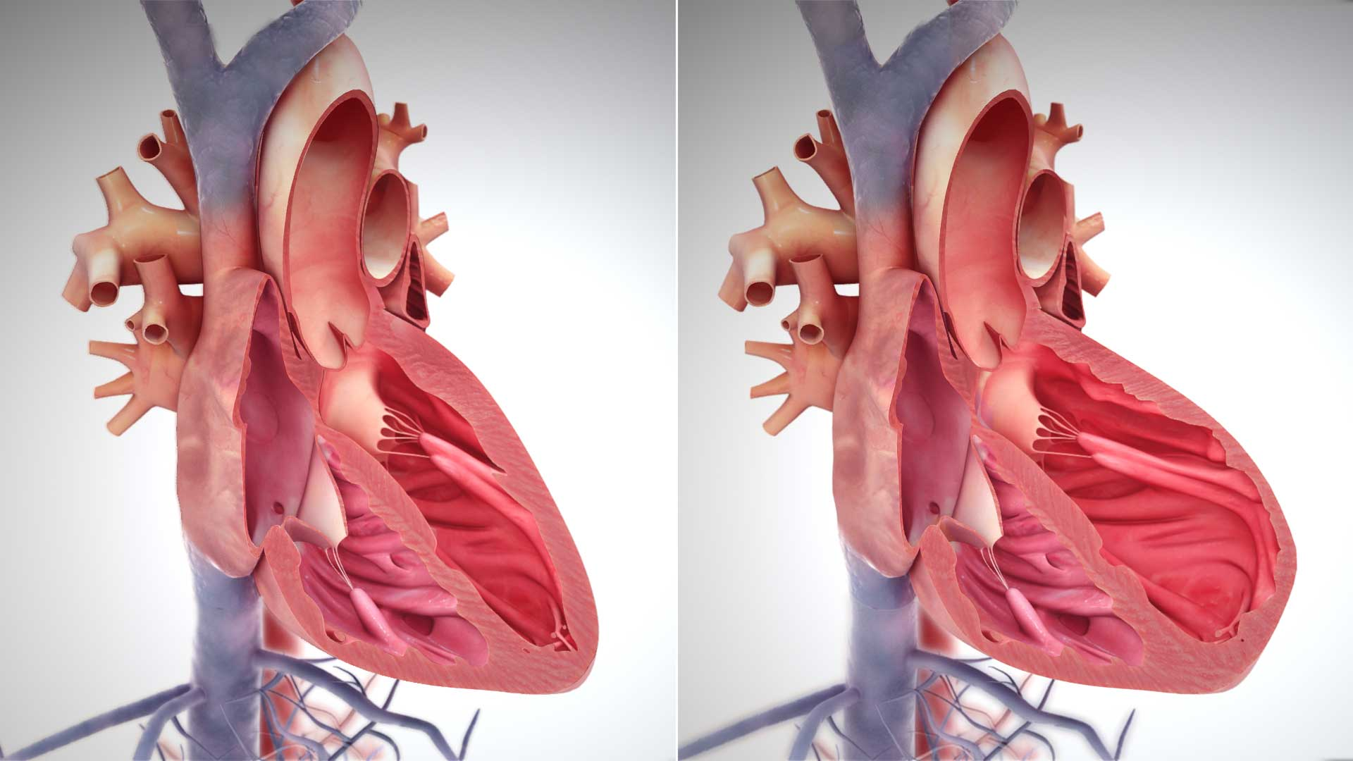 Image: A depiction of heart enlargement during heart failure.